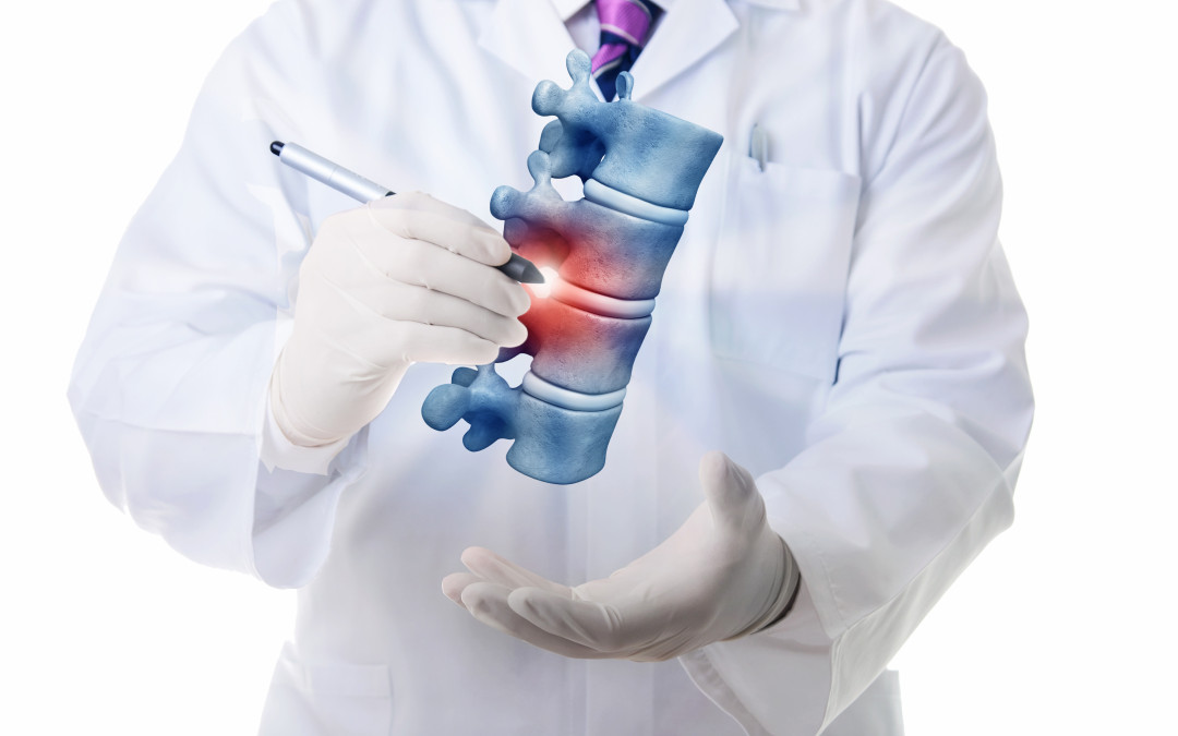 What Is The Cause of Sciatica and How Is It Treated?
