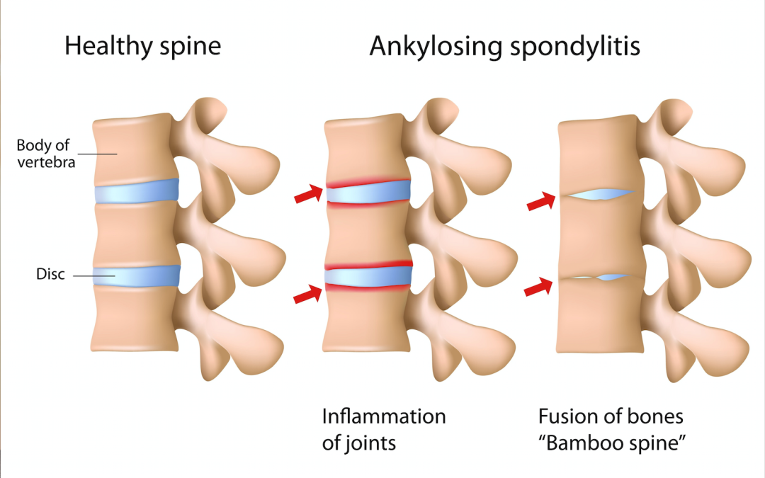 How Arthritis Can Affect the Spine and How It Is Treated