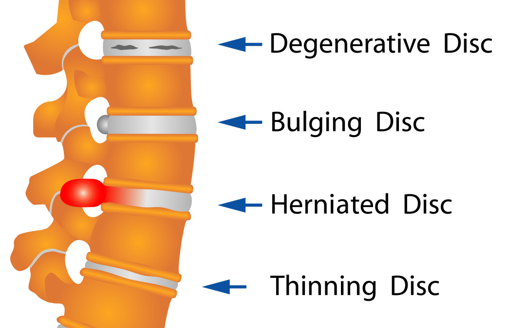 "Understanding the Real Meaning of ""Degenerative Disc Disease"""