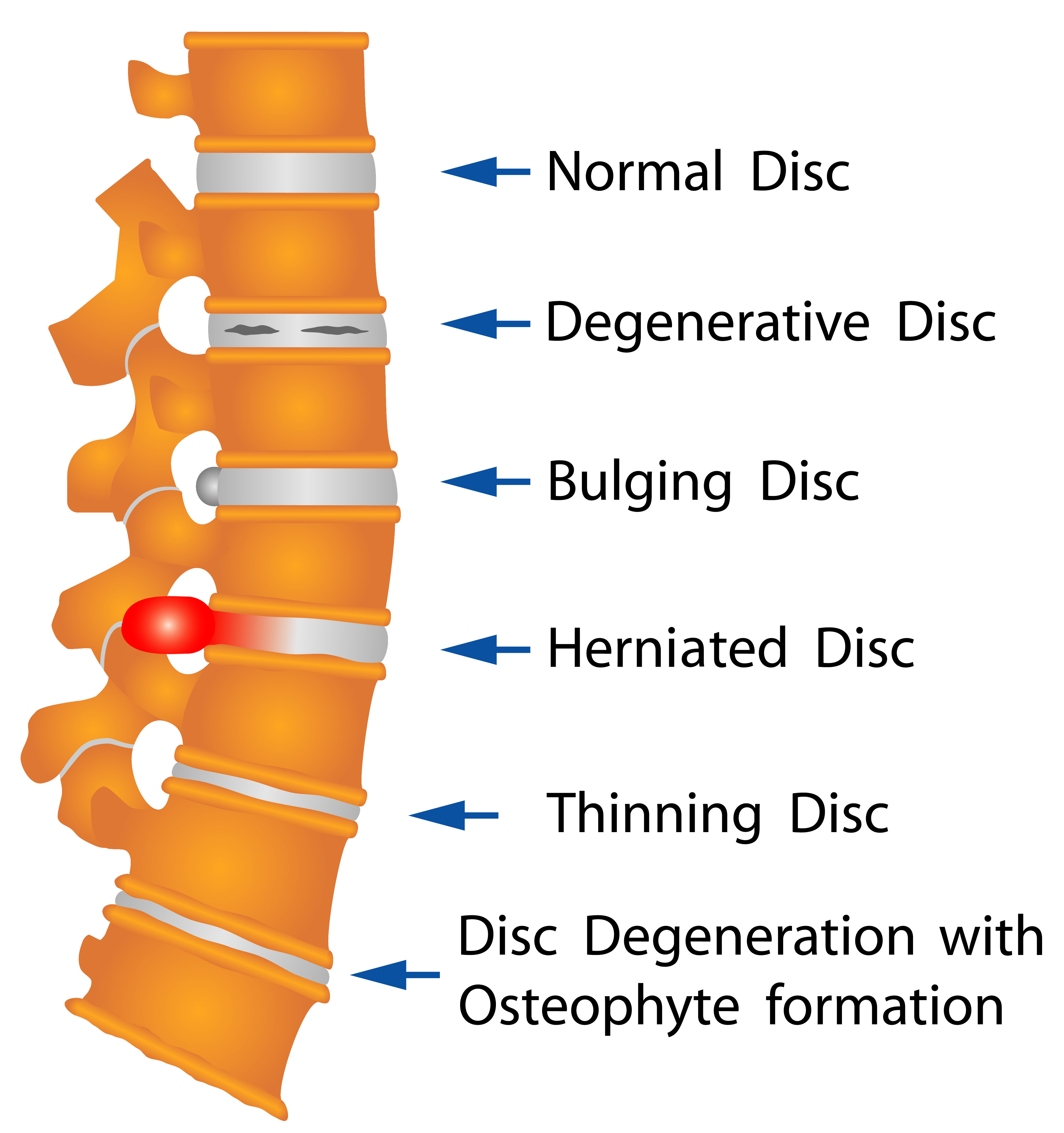 "Understanding the Real Meaning of ""Degenerative Disc Disease"