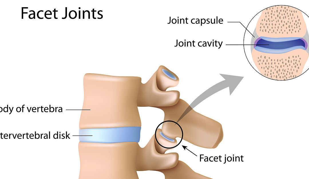 What is Facet Joint Syndrome and How Can It Be Treated? - New ...