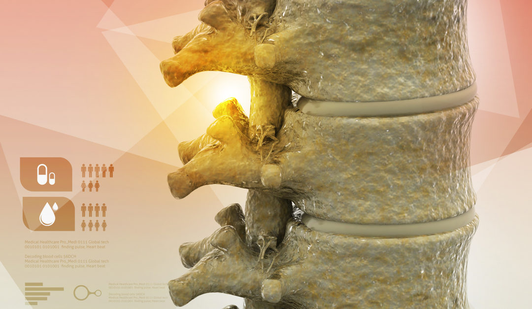 Determining the Severity of Spinal Arthritis