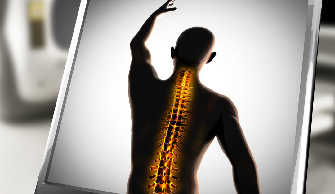 3 Benefits of Minimally Invasive Spine Surgery