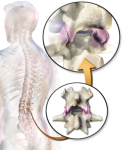 facet joints lower back pain