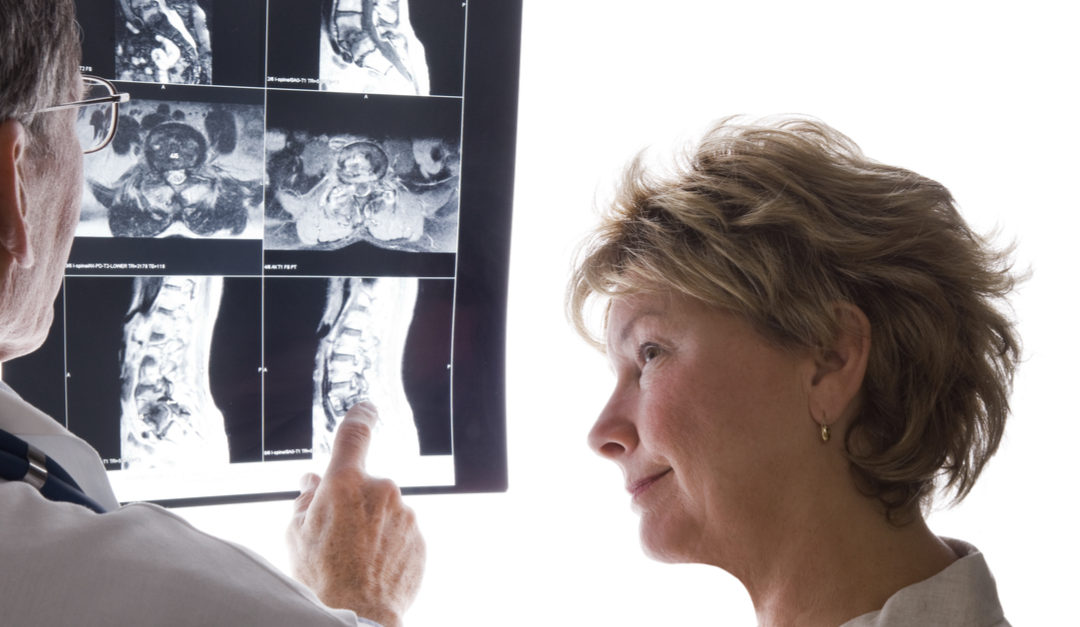 Open Spine Surgery vs. Minimally Invasive Surgery…Know the Facts