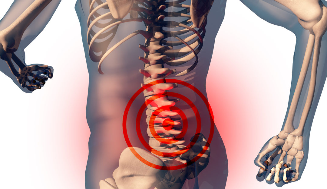 5 Common Spine Conditions That Cause Back or Neck Pain