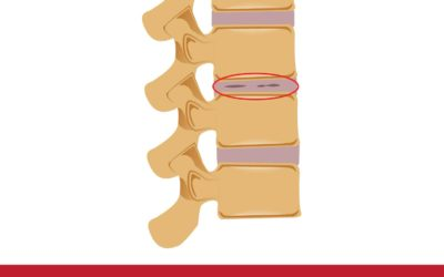 Appropriately Diagnosing and Treating Degenerative Disc Disease